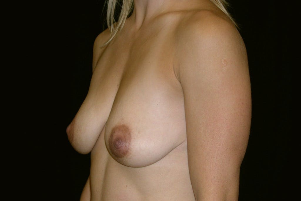 Breast Augmentation Gallery - Patient 39235606 - Image 5
