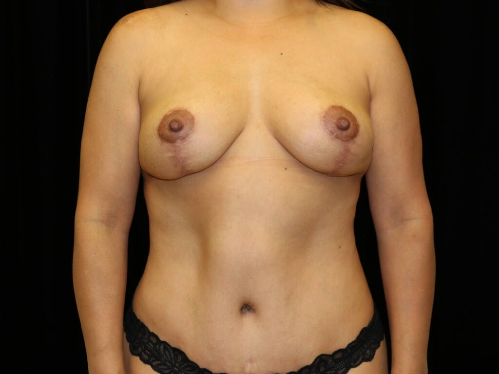 Breast Reduction T Incision Gallery - Patient 39235616 - Image 2
