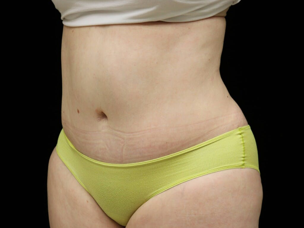 Tummy Tuck Gallery - Patient 39235611 - Image 8