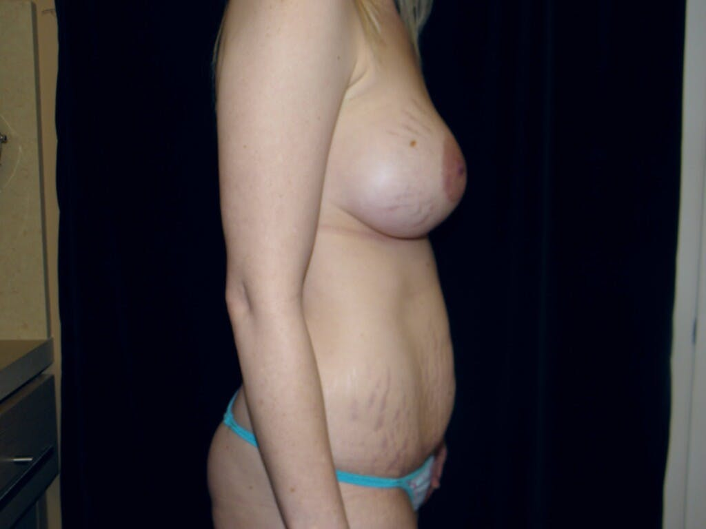 Peri-areolar Breast Lift Gallery - Patient 39235613 - Image 5