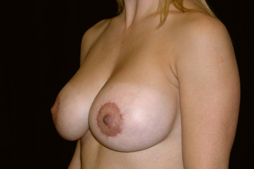 Breast Augmentation Gallery - Patient 39235606 - Image 6