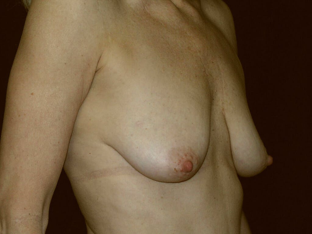 Vertical and Inverted T Breast Lift Gallery - Patient 39235619 - Image 1