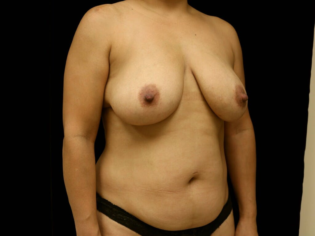 Breast Reduction T Incision Gallery - Patient 39235616 - Image 3
