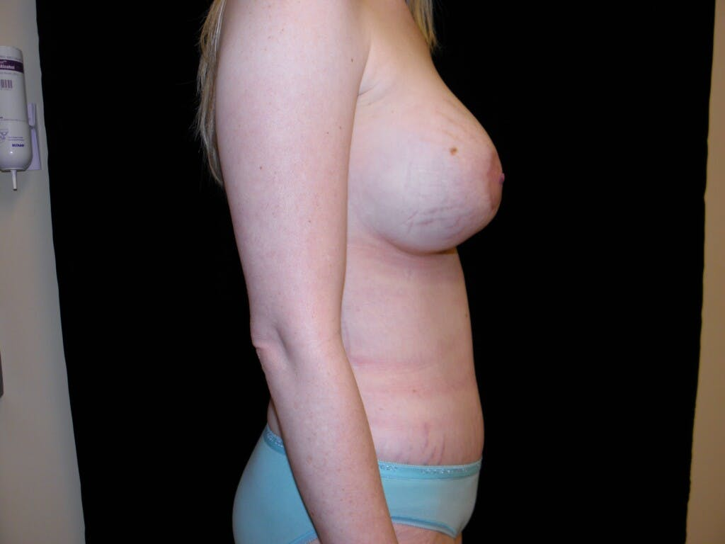 Peri-areolar Breast Lift Gallery - Patient 39235613 - Image 6