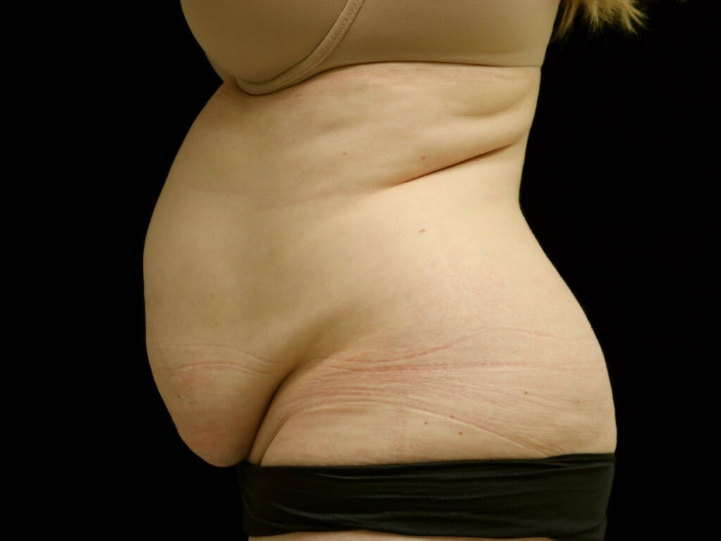 Tummy Tuck Gallery - Patient 39235611 - Image 9