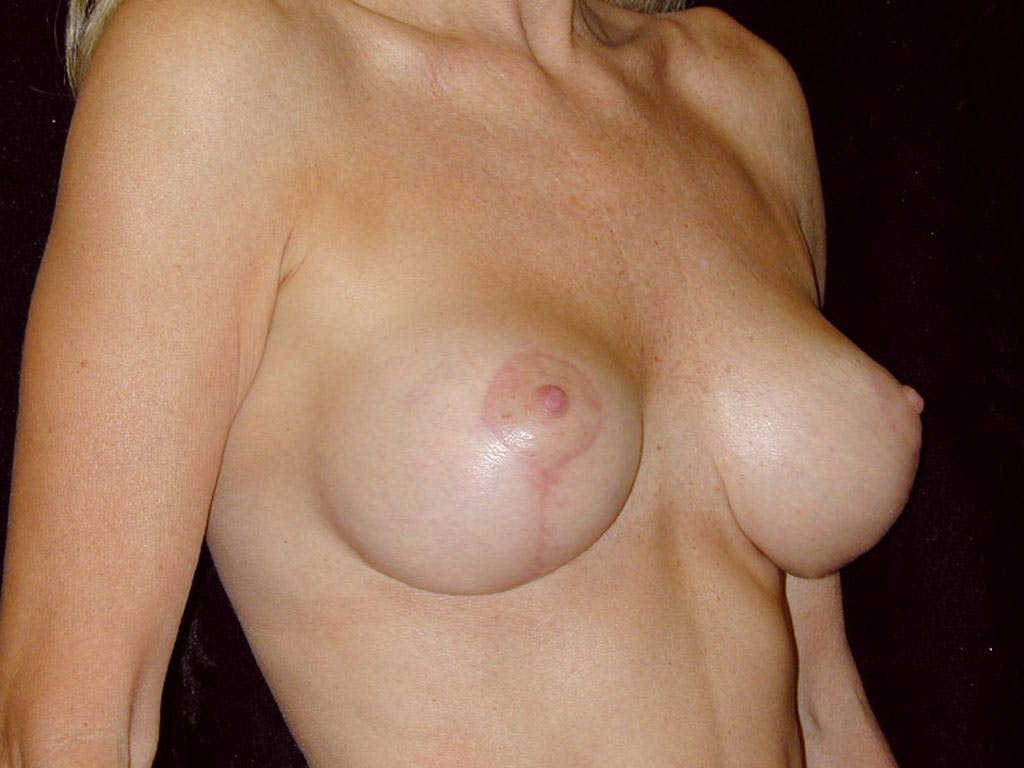 Vertical and Inverted T Breast Lift Gallery - Patient 39235619 - Image 2