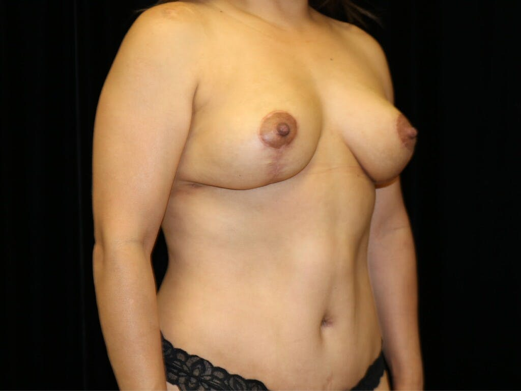Breast Reduction T Incision Gallery - Patient 39235616 - Image 4