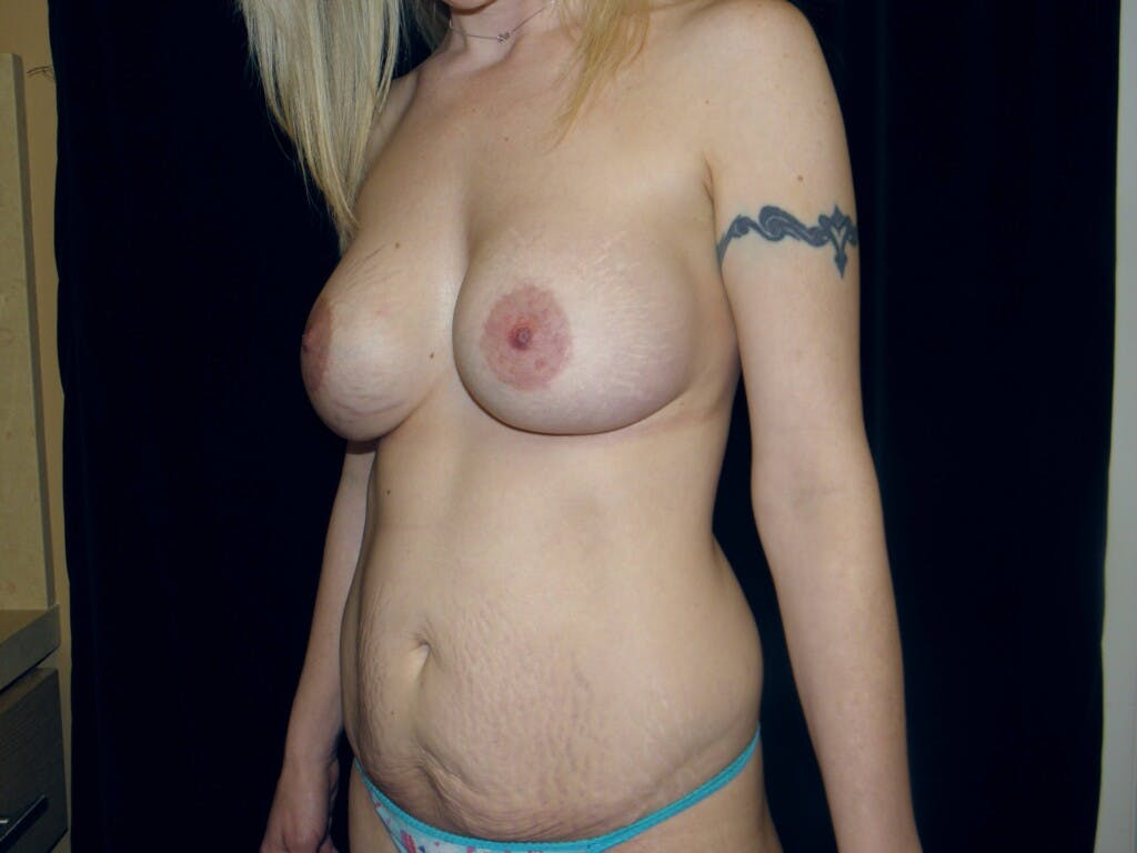 Peri-areolar Breast Lift Gallery - Patient 39235613 - Image 7