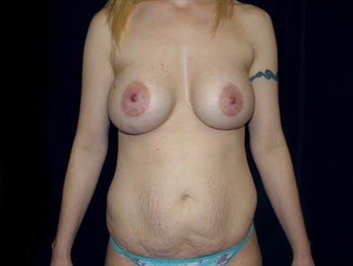 Revision Breast Surgery Gallery - Patient 39235610 - Image 1