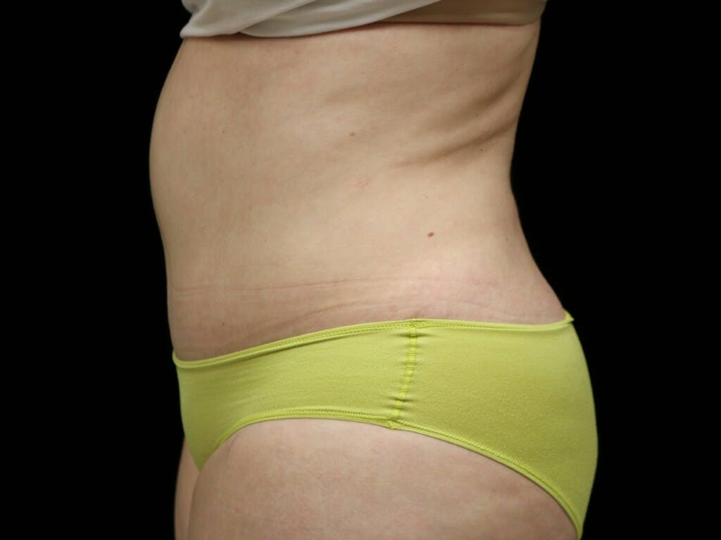 Tummy Tuck Gallery - Patient 39235611 - Image 10