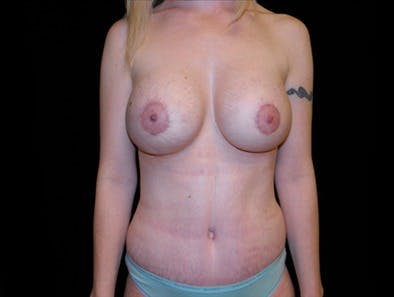 Revision Breast Surgery Gallery - Patient 39235610 - Image 2