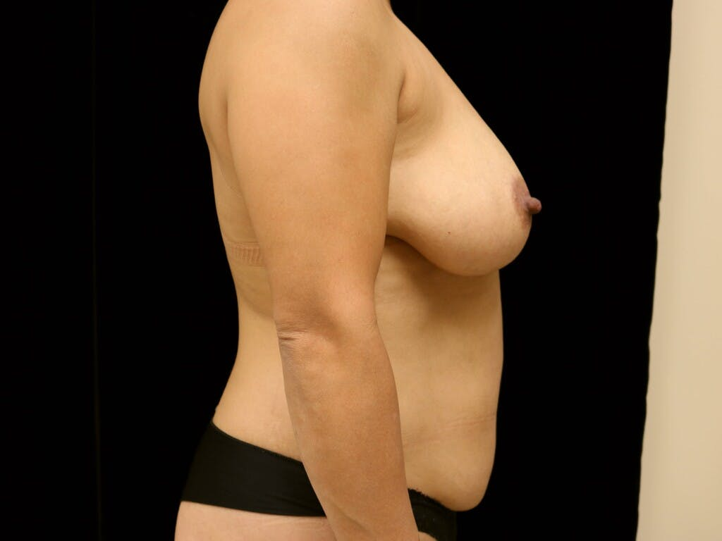 Breast Reduction T Incision Gallery - Patient 39235616 - Image 5