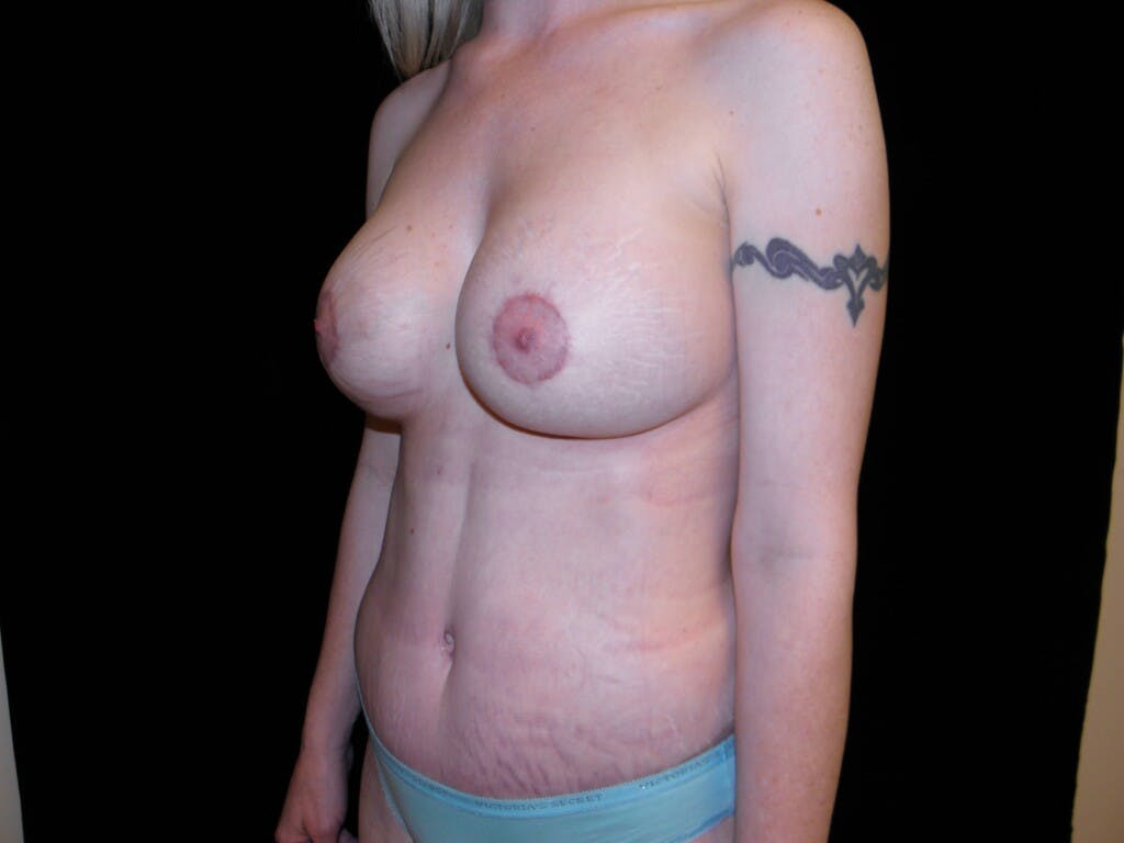 Peri-areolar Breast Lift Gallery - Patient 39235613 - Image 8