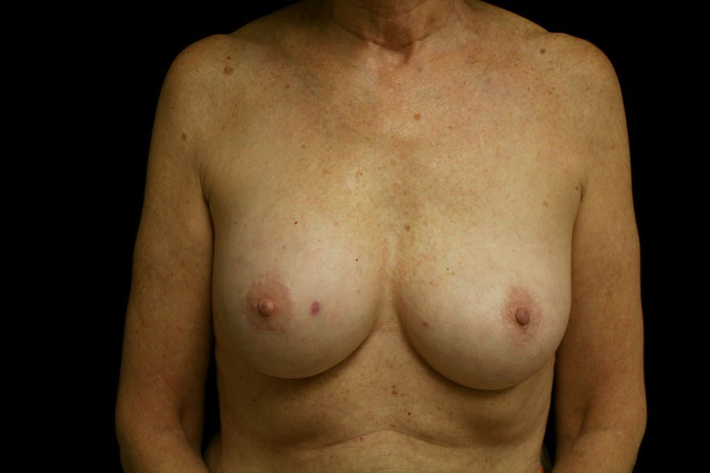 Breast Augmentation Gallery - Patient 39235615 - Image 1