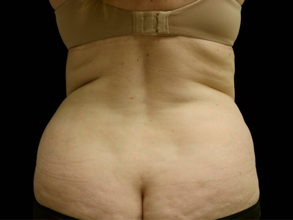 Tummy Tuck Gallery - Patient 39235611 - Image 11
