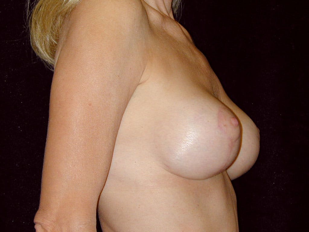 Vertical and Inverted T Breast Lift Gallery - Patient 39235619 - Image 4