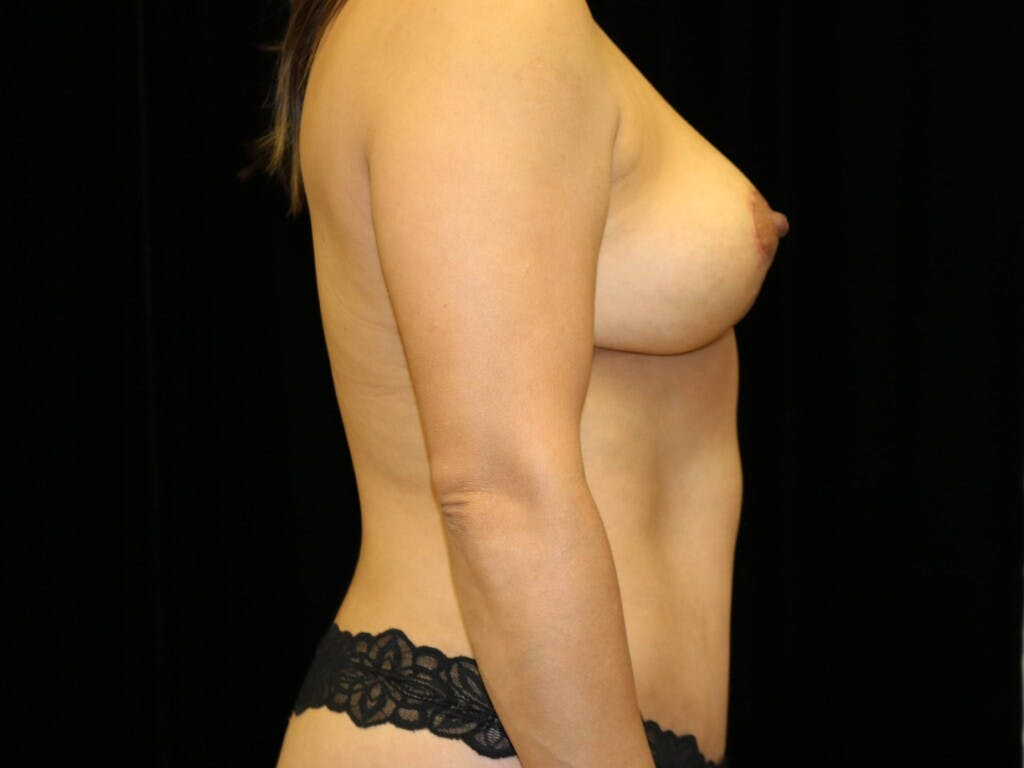 Breast Reduction T Incision Gallery - Patient 39235616 - Image 6