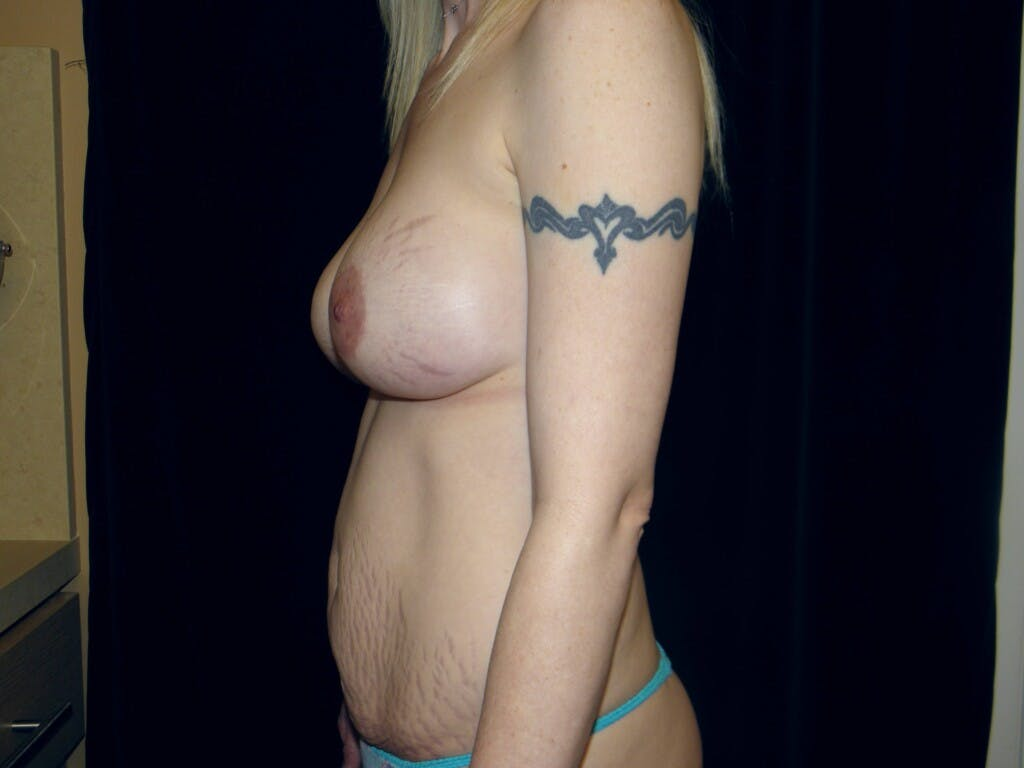 Peri-areolar Breast Lift Gallery - Patient 39235613 - Image 9