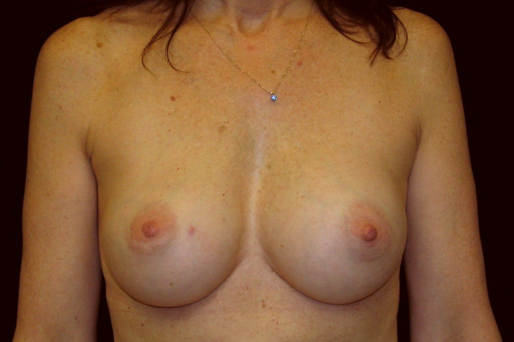 Breast Augmentation Gallery - Patient 39235615 - Image 2