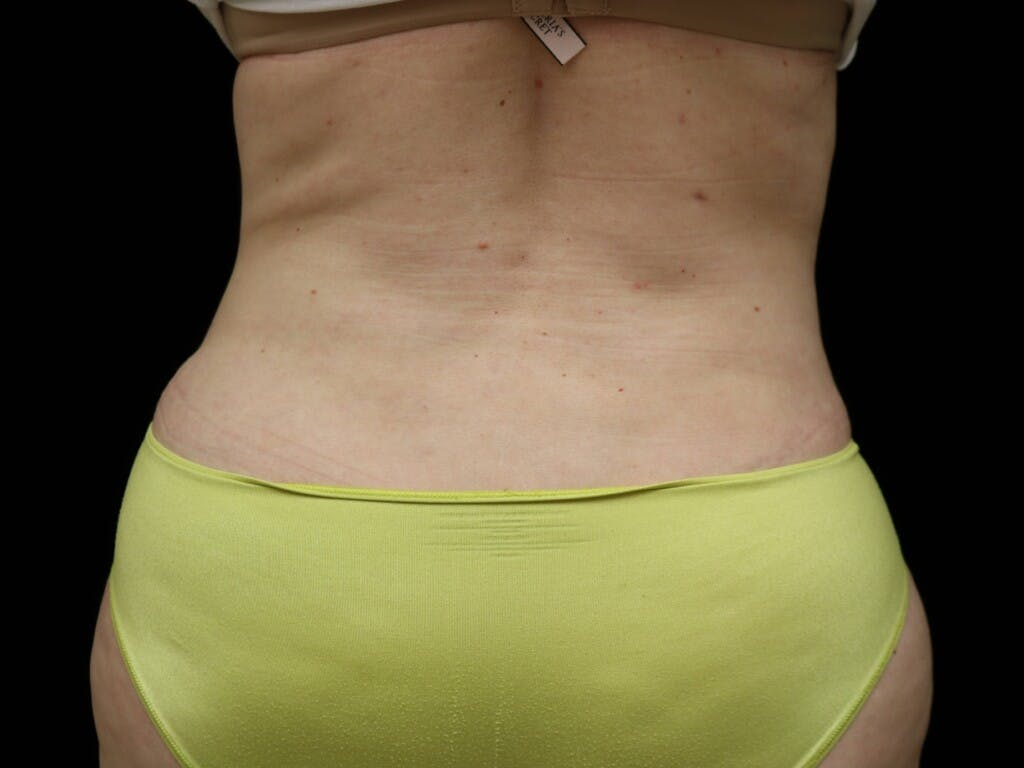 Tummy Tuck Gallery - Patient 39235611 - Image 12