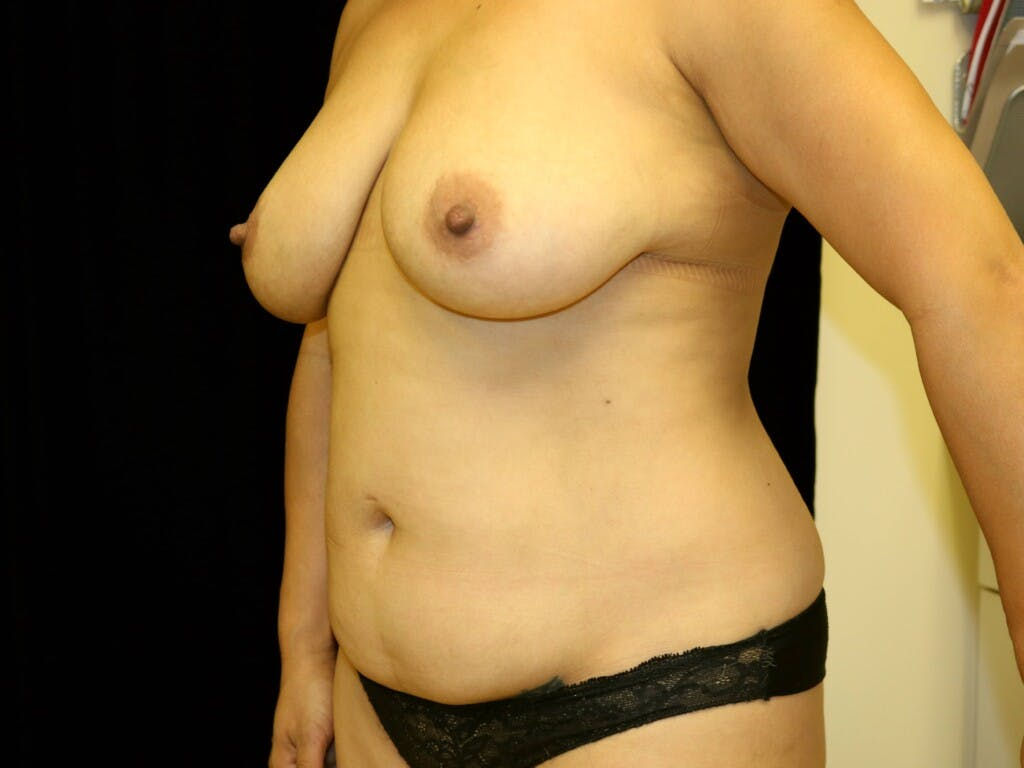 Breast Reduction T Incision Gallery - Patient 39235616 - Image 7