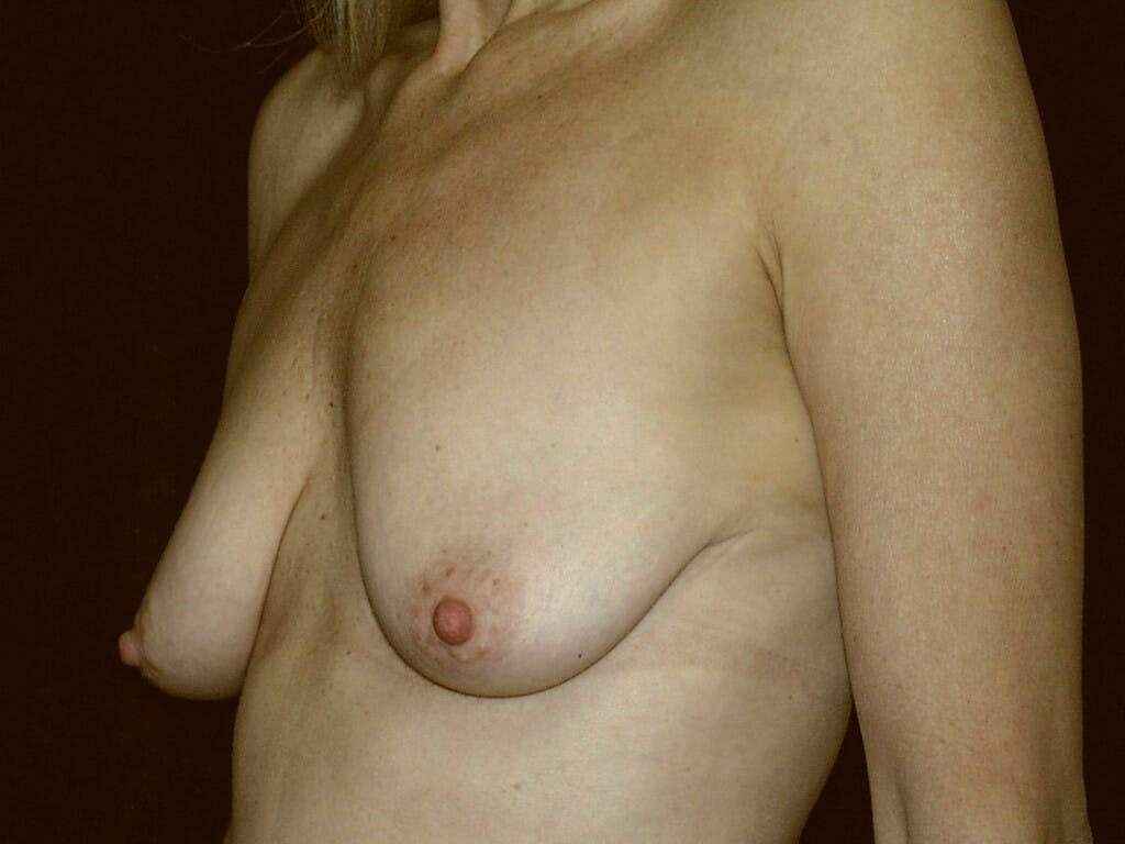 Vertical and Inverted T Breast Lift Gallery - Patient 39235619 - Image 5
