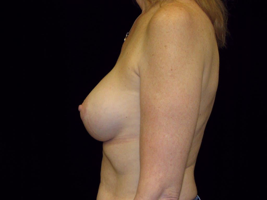 Breast Augmentation Gallery - Patient 39235615 - Image 3