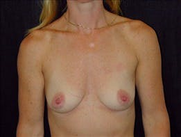Revision Breast Surgery Gallery - Patient 39235614 - Image 1