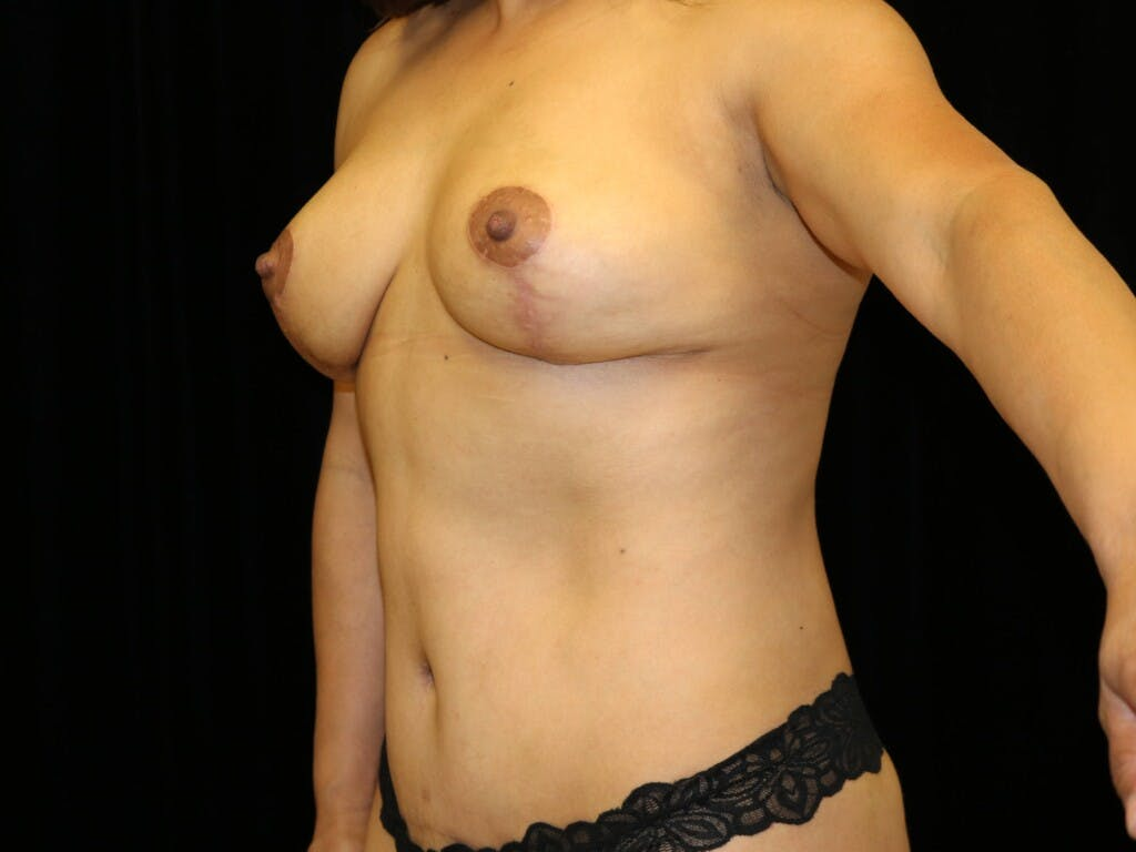 Breast Reduction T Incision Gallery - Patient 39235616 - Image 8
