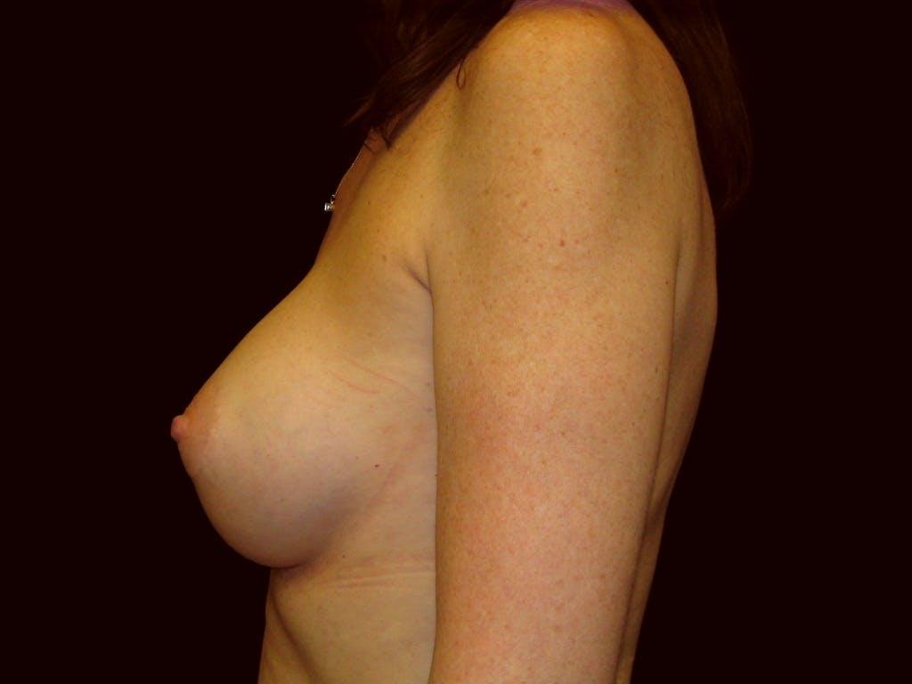 Breast Augmentation Gallery - Patient 39235615 - Image 4