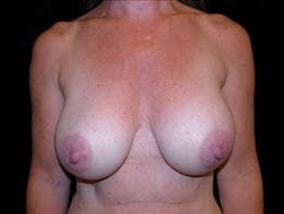 Revision Breast Surgery Gallery - Patient 39235614 - Image 2