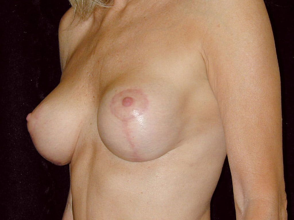 Vertical and Inverted T Breast Lift Gallery - Patient 39235619 - Image 6
