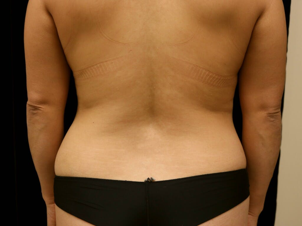 Breast Reduction T Incision Gallery - Patient 39235616 - Image 9