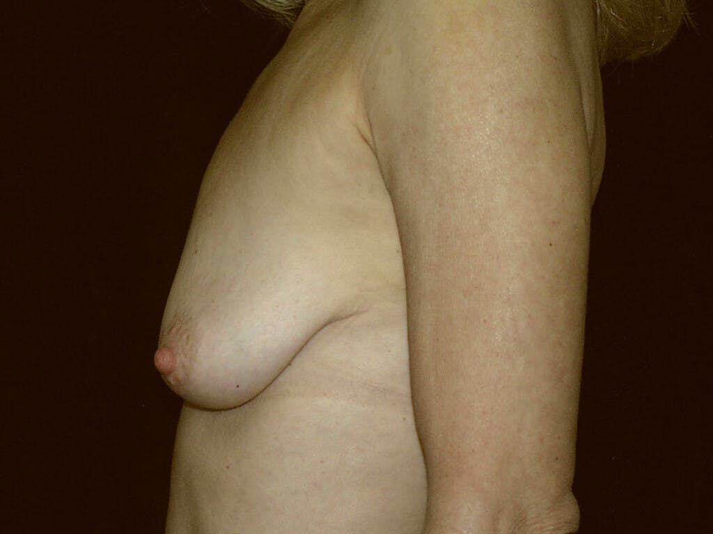 Vertical and Inverted T Breast Lift Gallery - Patient 39235619 - Image 7