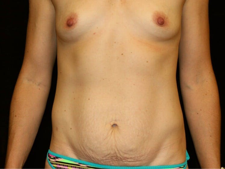 Tummy Tuck Gallery - Patient 39235625 - Image 1