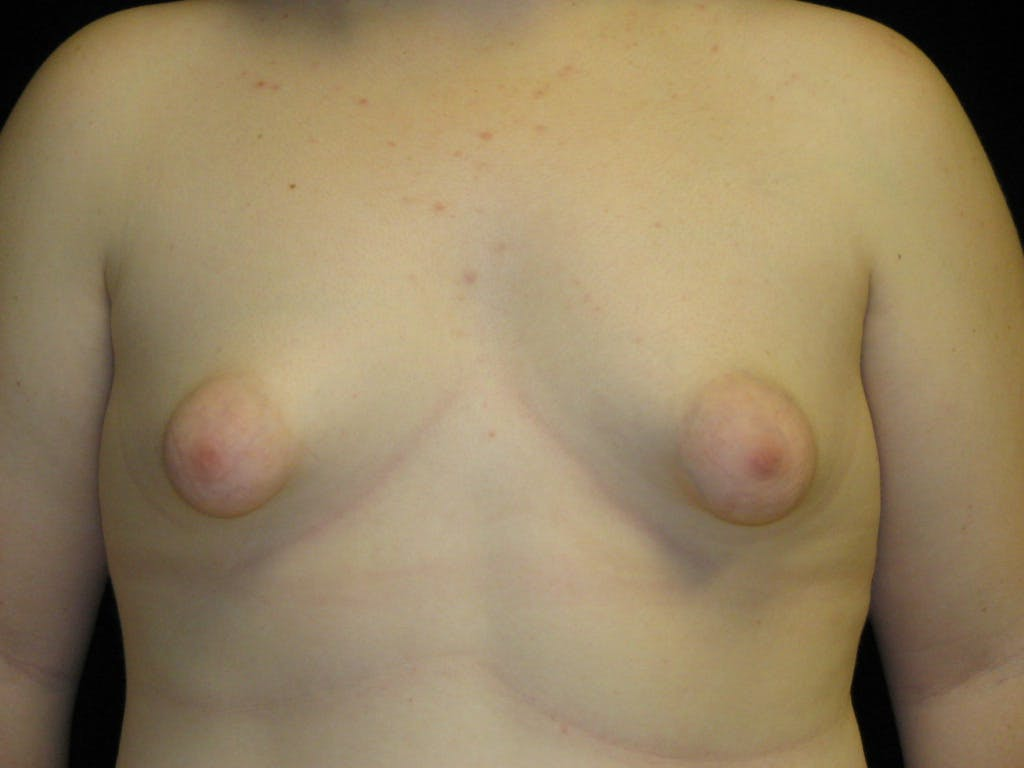 Peri-areolar Breast Lift Gallery - Patient 39235627 - Image 1