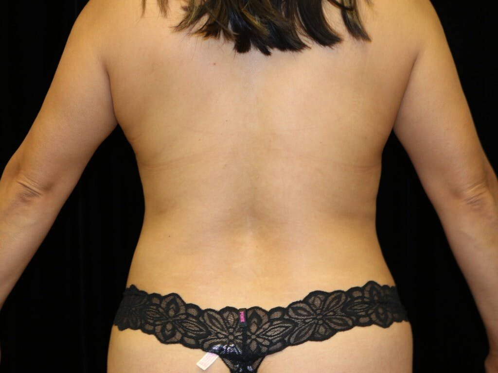 Breast Reduction T Incision Gallery - Patient 39235616 - Image 10