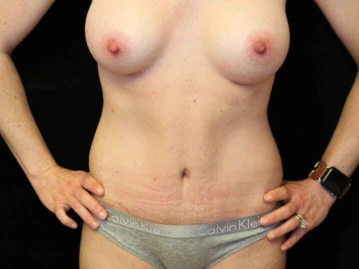 Tummy Tuck Gallery - Patient 39235625 - Image 2