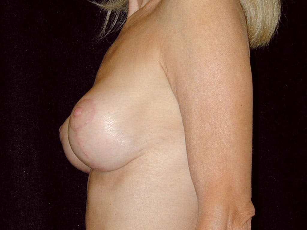 Vertical and Inverted T Breast Lift Gallery - Patient 39235619 - Image 8