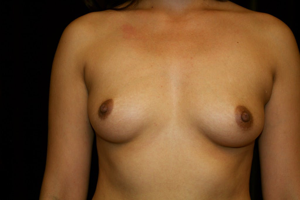 Breast Augmentation Gallery - Patient 39235623 - Image 1