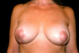 Revision Breast Surgery Gallery - Patient 39235620 - Image 2