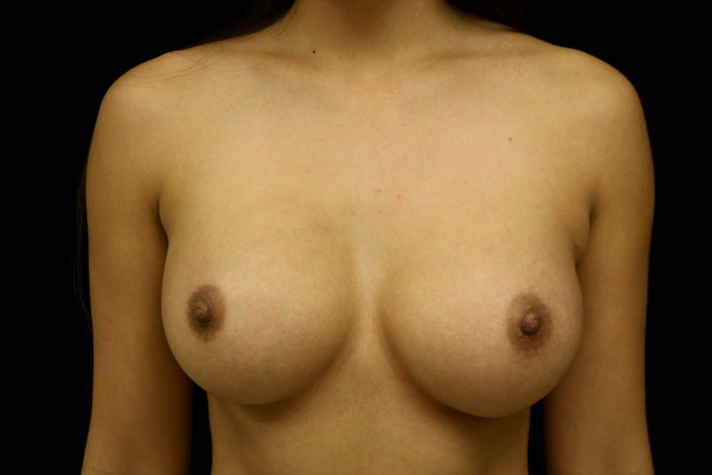 Breast Augmentation Gallery - Patient 39235623 - Image 2