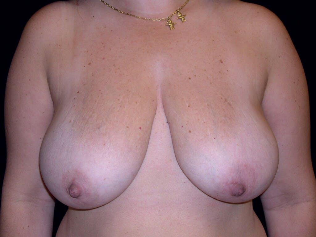 Breast Reduction T Incision Gallery - Patient 39235628 - Image 1