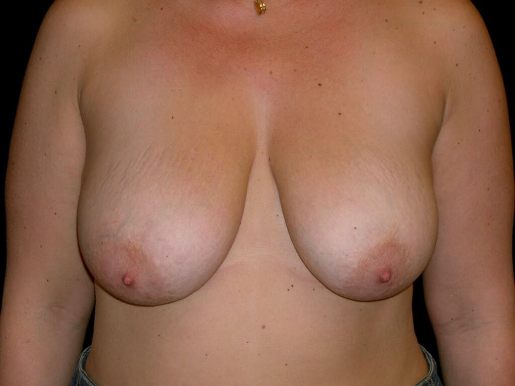 Vertical and Inverted T Breast Lift Gallery - Patient 39235631 - Image 1