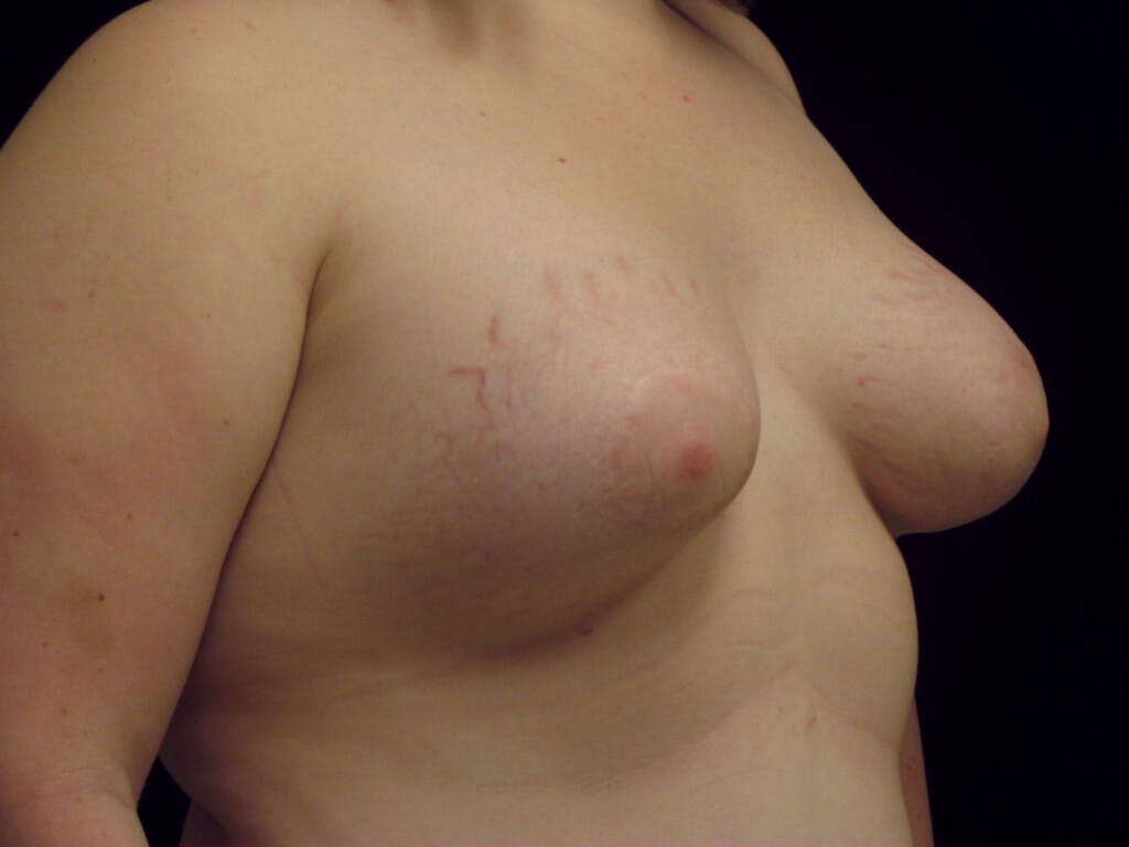 Peri-areolar Breast Lift Gallery - Patient 39235627 - Image 4
