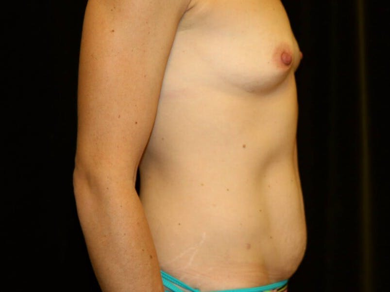Tummy Tuck Gallery - Patient 39235625 - Image 5