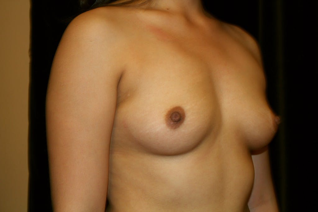 Breast Augmentation Gallery - Patient 39235623 - Image 3