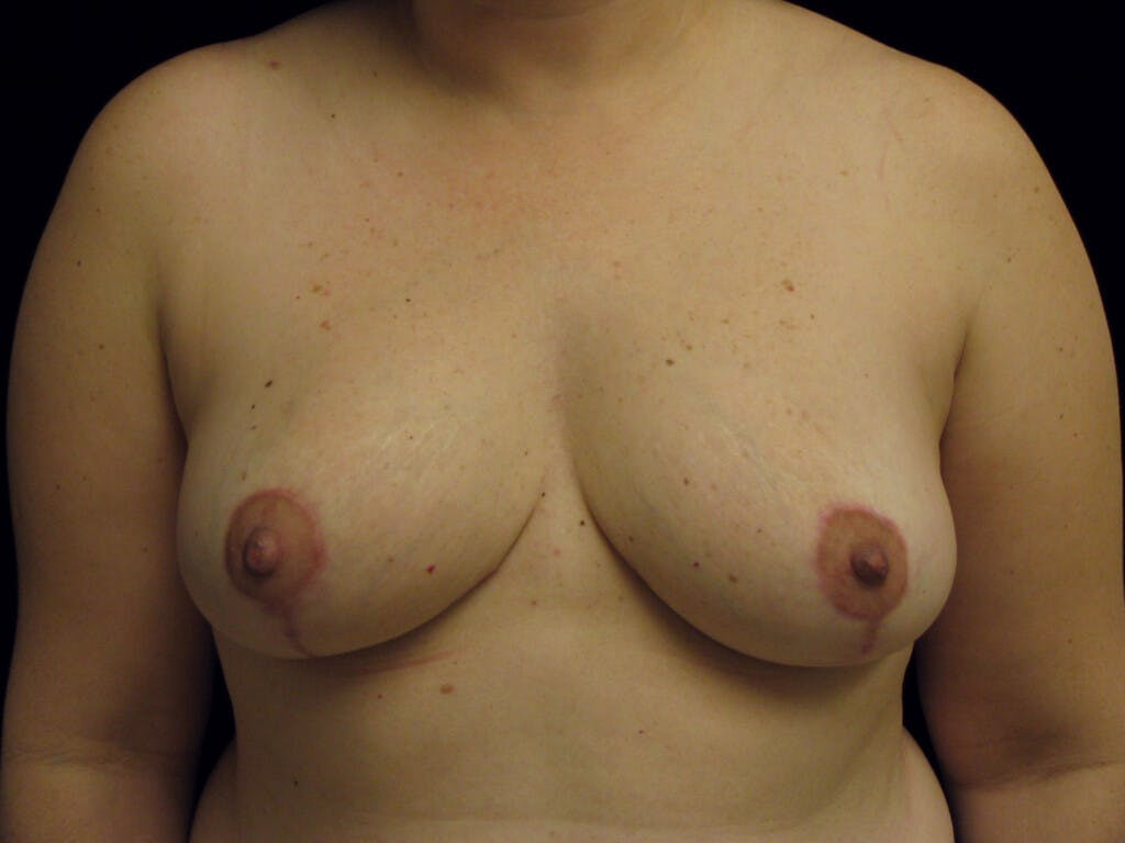 Breast Reduction T Incision Gallery - Patient 39235628 - Image 2