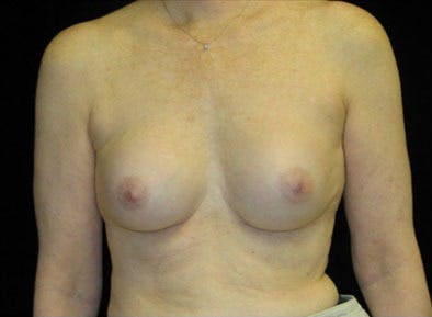 Revision Breast Surgery Gallery - Patient 39235622 - Image 1