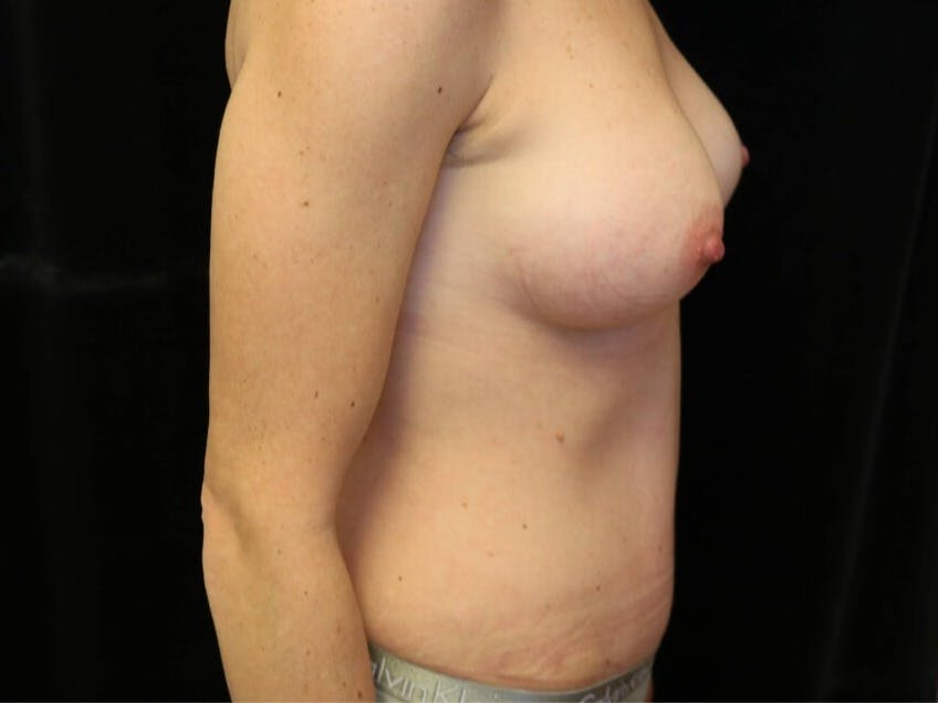 Tummy Tuck Gallery - Patient 39235625 - Image 6